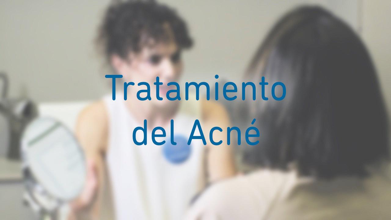 ESTELA Belleza - Tratamiento antiacné (Gijón, Asturias)